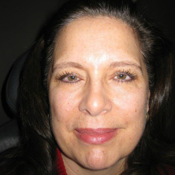 Before-Cosmetic Facelift