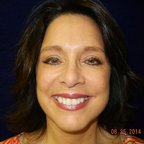 After-Cosmetic Facelift