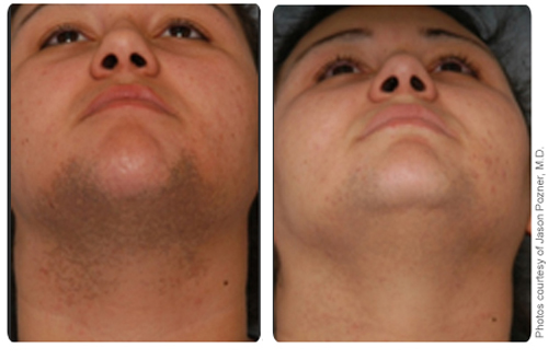 Laser Hair Removal Treatment on Chin - Before and After
