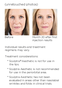 Before and After - Sculptra