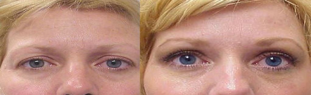 Young woman before and after Blepharoplasty