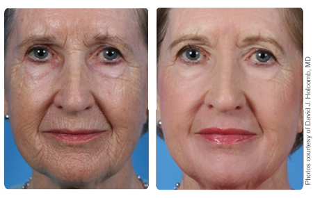 Image of older woman's face before and after ProFractional resurfacing treatment