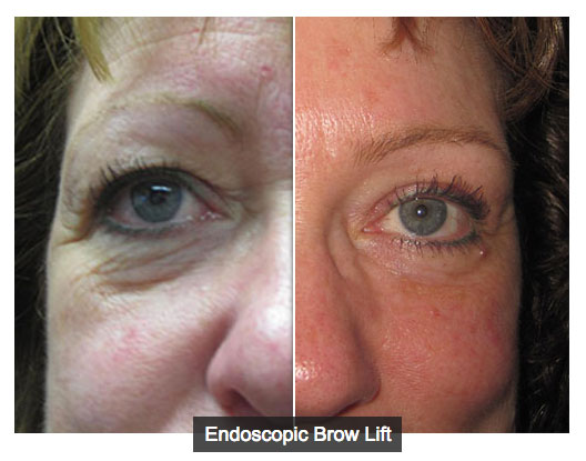 Woman before and after brow lift surgery.