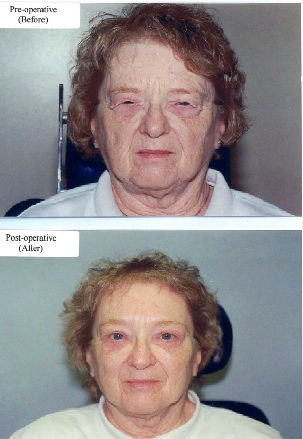 Image of woman before and after Blepharoplasty.