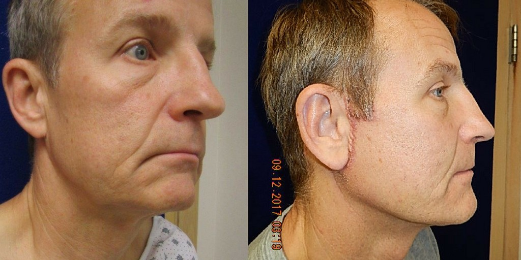 Man before and after face lift.