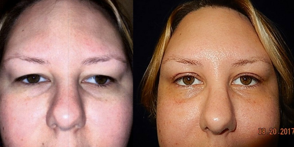 Before and after browlift surgery photos of a woman.
