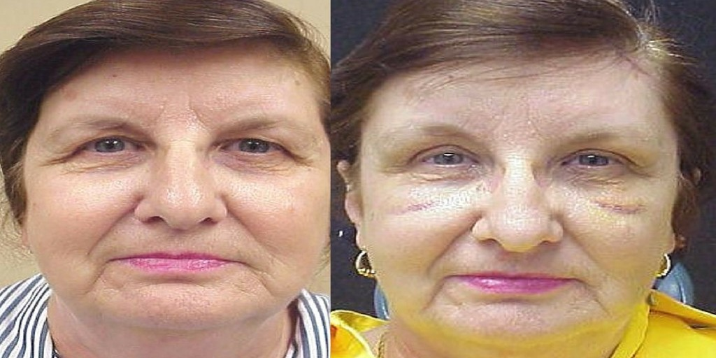 Image of woman before and after brow lift surgery.
