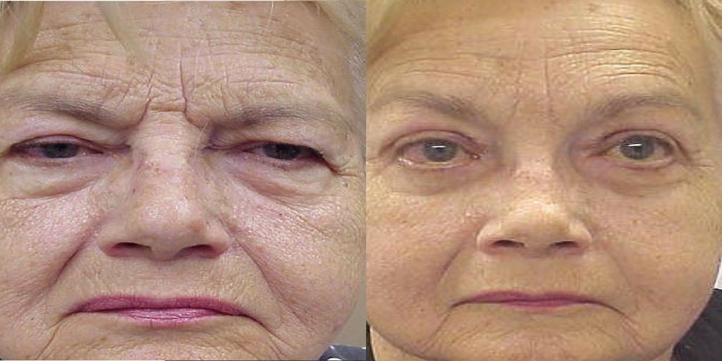 Elderly woman before and after brow lift surgery.