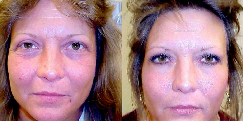 Brow lift procedure results photos of a young woman.