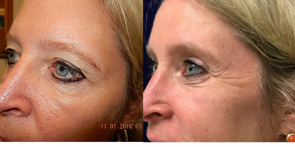 Middle aged woman before and after Blepharoplasty