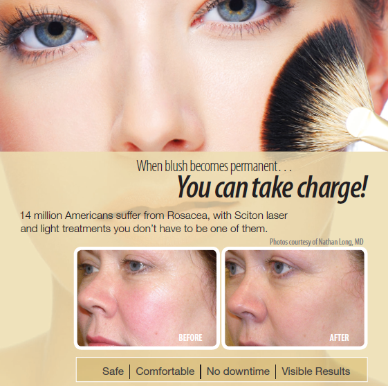 Image of woman before and after rosacea treatment