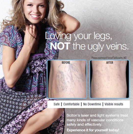 Image of legs before and after Sitcon's laser and light treatment on veins
