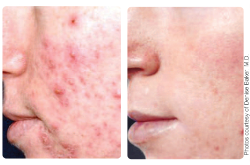 Image of before and after acne treatment