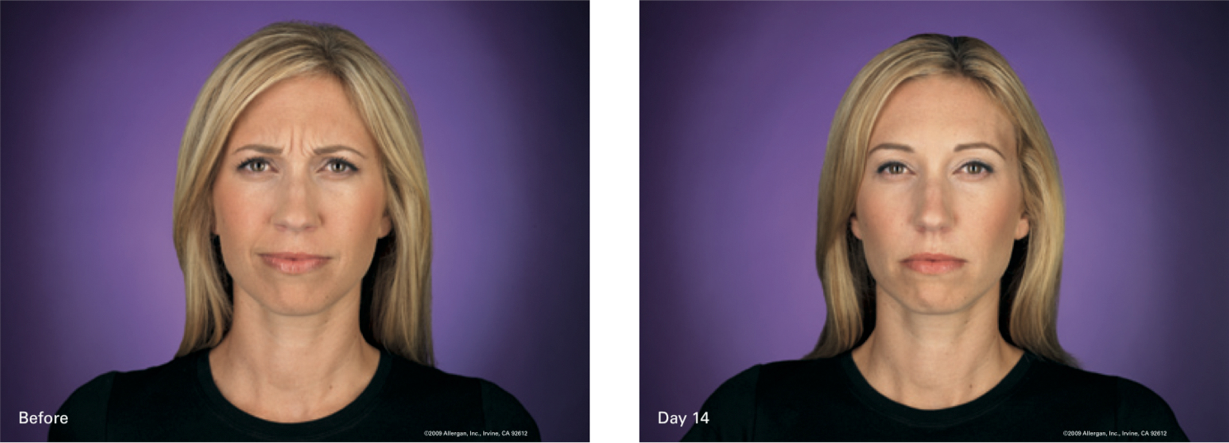 Blonde woman frowning before and 14 days after Botox Treatment.