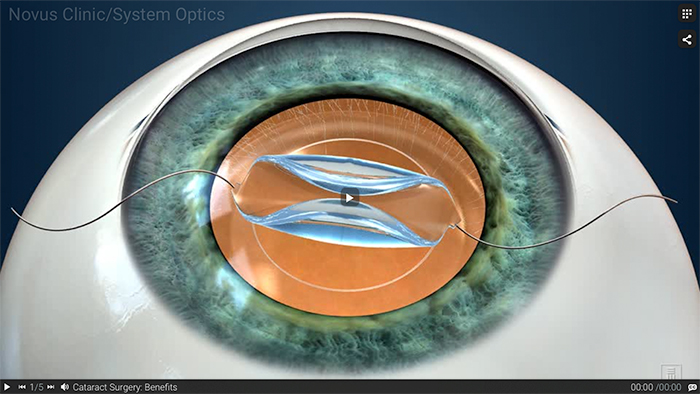 Image of illustration of cataract surgery.