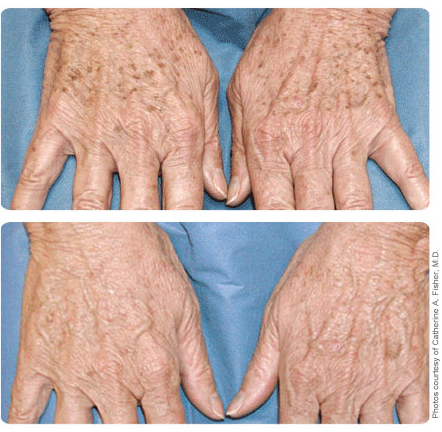 Image of hands with age spots before and after broad band light treatment