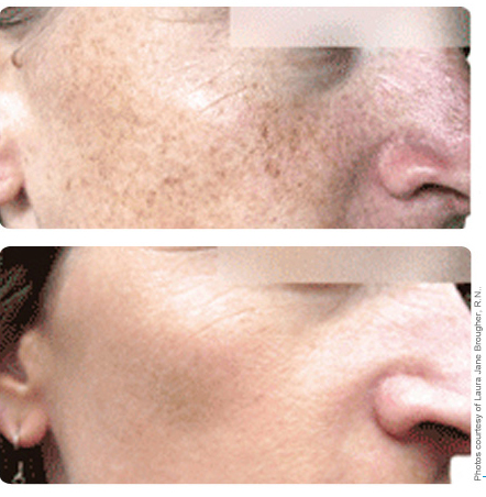 Image of face with age spots before and after broad band light treatment
