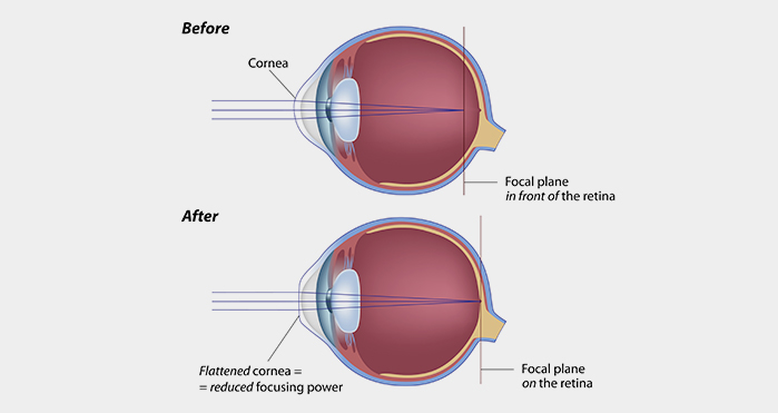Illustration of eye before and after Lasik surgery.