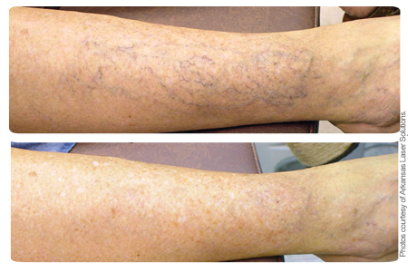 Image of leg before and after ClearScan YAG vein treatment