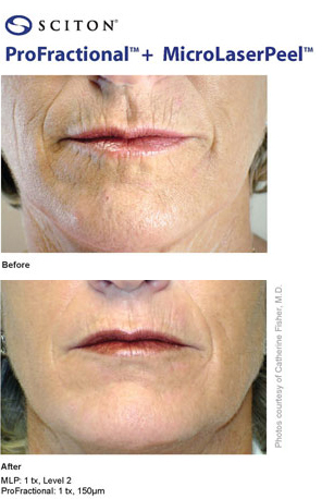 Images of woman before and after Profractional MicroLaserPeel.