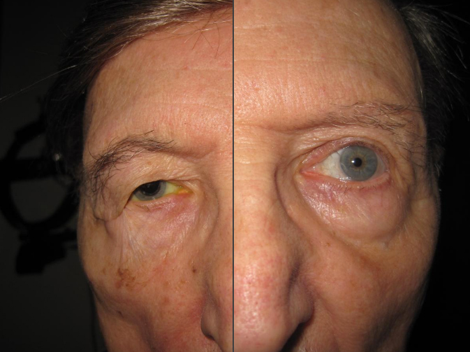 Image of person before and after eyelid ptosis repair