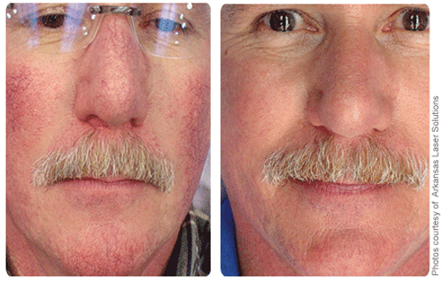 Image of man before and after rosacea treatment.