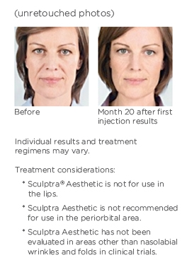 Woman before and after Sculptra Aesthetic treatment.