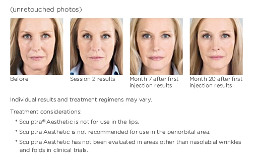 Images of woman before and after Sculptra Aesthetic treatment.