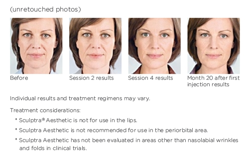 Women before and after Sculptra Aesthetic treatment.