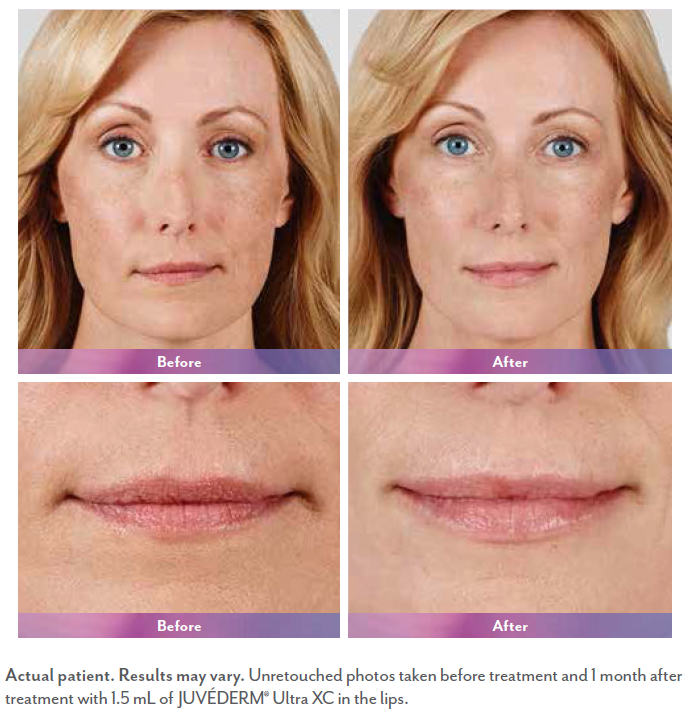 Alicia before and after juvederm surgery.