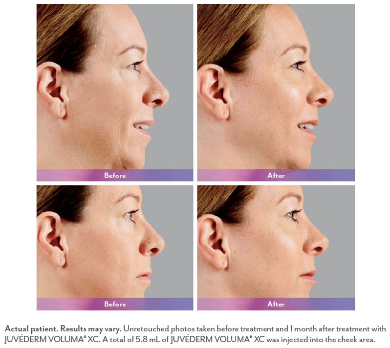 Woman before and after Juvederm injection.