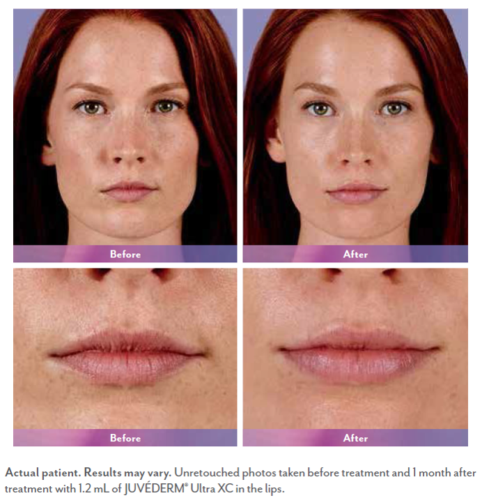 Clancy before and after Juvederm surgery.