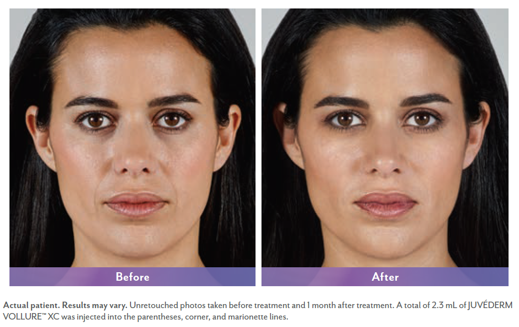 Karla before and after Juvederm surgery.