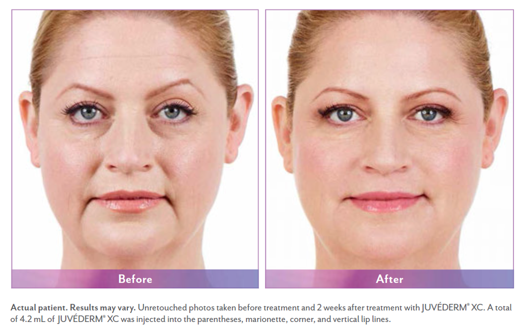Laura before and after juvederm surgery.