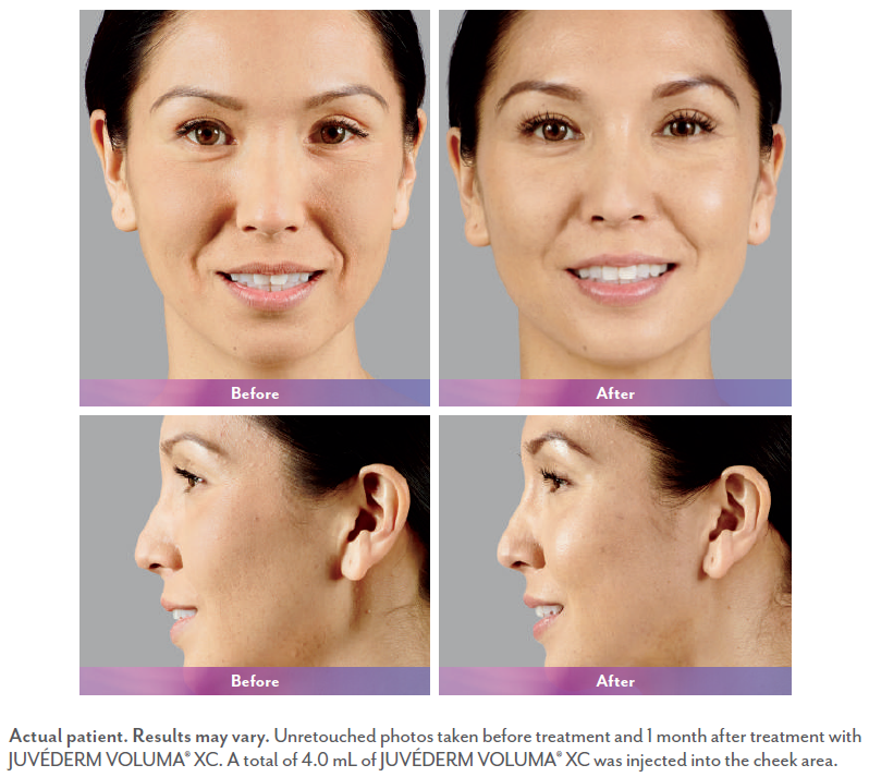 Pictures of woman before and after Juvederm injection.