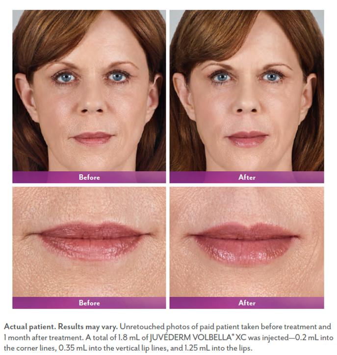 Sherilee's before and after juvederm.